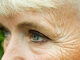 Photo of wrinkles around eye of an older woman